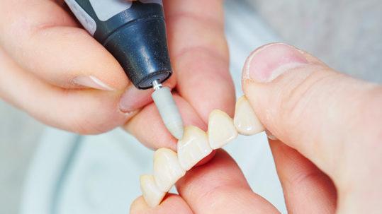 Dentista a Nove | Studio Dentistico Dental Fabris 27