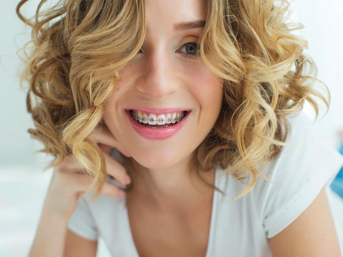Ortodonzia a Nove | Dentista a Nove | Studio Dentistico Dental Fabris 1